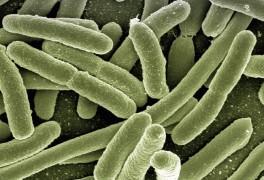 모유유산균 bnr17은 뭐가 달라요?