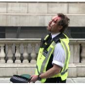 [영상] 시위대에 얻어맞고 경찰제복 피흘리는 영국 경찰 경찰제복