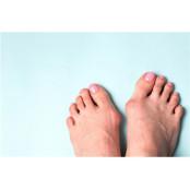 발가락 휘는 무지외반증, 남성수술 수술적 치료로 미용+기능적 남성수술 개선 가능
