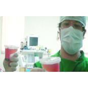 "[Health&Beauty]신의료기기 사용, 쉬워져… ""스마트셀, 줄기세포 치료효과 높여"" 10CC주사기"