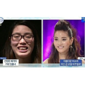 '잇몸녀' '거유녀'… 성형 거유 유발 논란속 인기몰이 거유