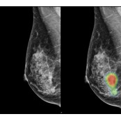 """루닛, """"AI로 유방암 란셋 판독 능력 향상""""…란셋 란셋 논문 게재"""