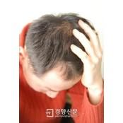 스트레스로 인한 탈모 마이녹실 프로페시아 치료 핵심은 'P1P' 마이녹실 프로페시아 성분