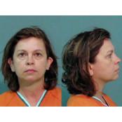 안약 물에 타 안약 남편 살해한 美 안약 아내…징역 25년형
