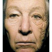 여름철 햇볕에 피부는 '자글자글' … 비타민A연고로 예방한다 레티노이드 레티놀 차이