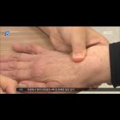 진통제·파스 믿다가, 류마티스 관절염 큰 병 될라 손가락파스