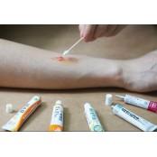 특정 연고 오래 쓰면, 혈관 확장 등 아시클로버연고 부작용… 올바른 연고 사용법