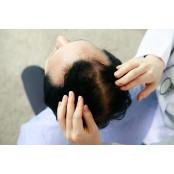 얇아진 머리카락 굵기…탈모의 미녹시딜 시작입니다