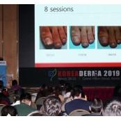 '주블리아-레이저 요법' 병용 치료법 공유의 주블리아 장 열려