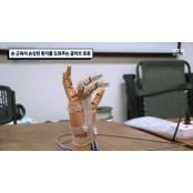 손 근육이 손상된 폴리글러브 환자를 도와주는 글러브 폴리글러브 로봇