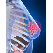 핑크빛 라이프 위협하는 핑크유두 유방암, 조기발견 자가 핑크유두 검진으로도 가능