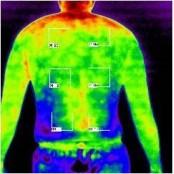 전신다한증 환자 흉부교감신경절제술로 교감신경절제술 치료
