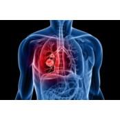 시알리스+혈압약, 폐동맥고혈압 억제효과